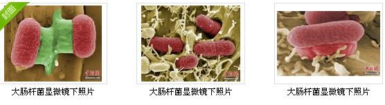德国公布致命大肠杆菌显微镜下照片